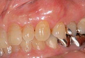 再生療法(初診時)女性 52歳 主訴:左上の歯肉腫脹(コンテンツ)